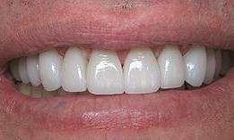 8 upper porcelain veneers