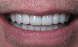 8-upper-and-8-lower-porcelain-veneers-After-Image