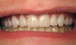 Porcelain-Crowns-and-bleaching-After-Image
