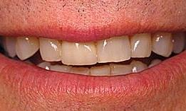 8-upper-porcelain-crowns-and-8-lower-porcelain-veneers-Before-Image