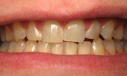 Porcelain-Crowns-and-bleaching-Before-Image